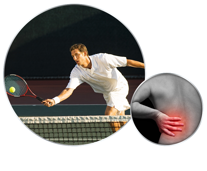 ozone-injection-therapy-for-back-pain